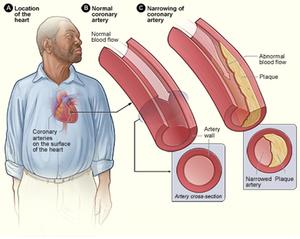 how to treat coronary heart disease gcse